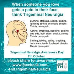 End Trigeminal Neuralgia: Trigeminal Neuralgia Awareness Trigeminal Neuralgia Treatment, Atypical Trigeminal Neuralgia, Occipital Neuralgia, Chronic Migraines, Chronic Pain, Fibromyalgia, Chronic Illness, Facial Nerve, Head Pain