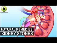 Kidney Stone - Natural Ayurvedic Home Remedies - YouTube