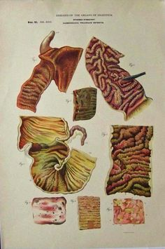 1885. Chromolithograph showing the Diseases of the Organs of Digestion in Epidemic Dysentery, Sec. VI,Tab. XIII in seven figures. Lithograph by W.M. Donaldson & Co. Featured in Pathological Anatomy, Pathology and Physical Diagnoses by  J.A. Jeancon, M.D.