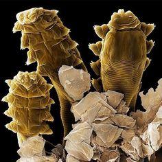 Justo en este momento, hay diminutos ácaros similares a las arañas viviendo en los poros de nuestro rostro. Se les llama Demodex Folliculorum y nada les gusta más para aparearse que nuestra cara en la que rompen los poros para dejar los huevos y después morir. Durante años, estas diminutas arañas eran consideradas seres inofensivos y pasajeros que pertenecían al ecosistema natural que existe en la piel. Sin embargo, los científicos han comenzado a creer que estos ácaros podrían ser la causa…
