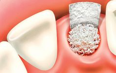 In oral surgery, bone grafting procedures are used to recreate jaw bone that has been lost due to gum disease, injury, or atrophy. This newly created bone is used to improve the health and strength of the jaw, as well as to anchor dental implants to repla