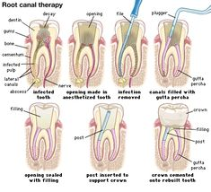 Dentaltown - What is Root Canal Treatment, also known as endodontic treatment? A root canal is a dental procedure in which the diseased or damaged pulp (core) of a tooth is removed and the inside areas (the pulp chamber and root canals) are filled and sea Dental Assistant Study, Dental Hygiene School, Dental Humor, Dental Procedures, Dental Hygienist, Children's Dental, Dental Scrubs, Dental World, Dental Life