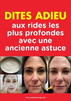 Pin by Ream Ahmed on Beauty in 2019 Beauty Care, Beauty Skin, Beauty Hacks, Beauty Tips For Women, Natural Beauty Tips, Anti Rides Yeux, Masque Anti Ride, Beauty Recipe, Wellness