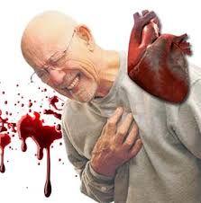 3 Jenis Makanan Perlu Dicegah Pesakit Jantung - Majalah Online Health, Health Care, Salud