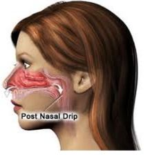 Home Remedies For Post Nasal Drip - Natural Cure & Treatments For Scalp Psoriasis | Search Home Remedy