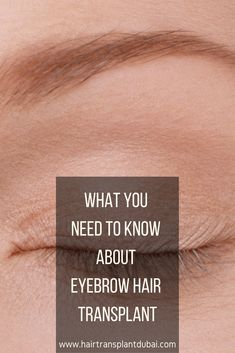 This is test Description added from Open Graph Eyebrow Hair Transplant, Hair Transplant Women, Losing Hair Women, Hair Loss Women, Bad Wigs, Hair Loss Medication, Hair Today Gone Tomorrow, Hair Thickening