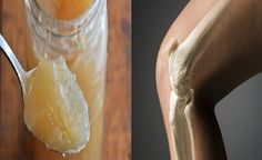 The following recipe improves the bone structure and retrieves the normal joint and knees function!  According to the experts,