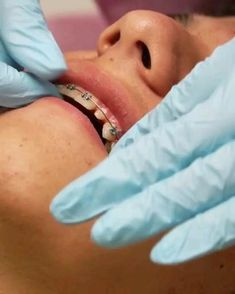 After you get braces, you'll also need to avoid certain foods that can become trapped between the braces and your gumline. These foods include: hard candy popcorn chewing gum When you have braces, your teeth are more inclined to trap foods that can cause tooth decay. Be mindful of how often you consume sugary beverages and starchy foods that can eat away at tooth enamel.