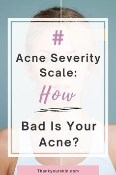 Do you know that every acne has its stage and you should know about its severity scale to treat it properly? The severity of any acne can be known with some basic rules. First, know about your acne condition before finding any solution. Cystic Acne Remedies, Overnight Acne Remedies, Hormonal Acne, Did You Know, Natural Remedies, Knowing You, Scale, Conditioner, Weighing Scale