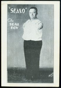 Sealo, the Seal Boy (Stanley Berent, 1899-1980). It is unknown technically what condition he suffered from to produce his flipper-like appendages; he was born a half century before the rash of thalidomide-related birth defects of the Cold War era. According to lore, he was discovered while working as a paper boy. He is said to have had an engaging, warm personality and worked all the major existing sideshows of his day before he finally retired in 1976.