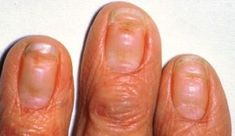 Did you know that your fingernails can provide clues to your overall health? Normal, healthy nails should appear smooth and have consistent coloring, but as you age, you may develop vertical ridges, or your nails may be a bit more brittle. Nail Health Signs, Bad Nails, Healthy Nails, Warts, You Nailed It, Nail Polish, Nail Art, Danger, Nail Arts