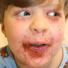 Top 9 Natural Cures For Herpes Kevin Trudeau. http://oneminuteherpescure.com/herpescure2014/?hop=0