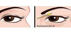 Ako prírodne vyliečiť ovísajúce očné viečka: Výsledky sú úžasné!