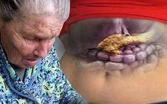 Iată cum mi-am tratat pancreasul. Vreau să vă dezvălui rețeta bunicii mele