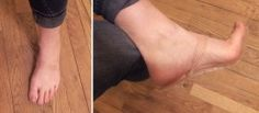Nearly invisible shoe for if you have a Cosplay that needs no shoes! Awesome idea here!