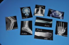 X-ray printables so kids can play match to their body parts. Elementary party or anytime!