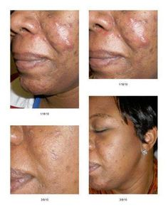 Clear up your acne and heal your acne scars for a more beautiful, healthy, even, radiant complexion. This is all possible with the Rodan + Fields UNBLEMISH regimen! Look at her amazing results!