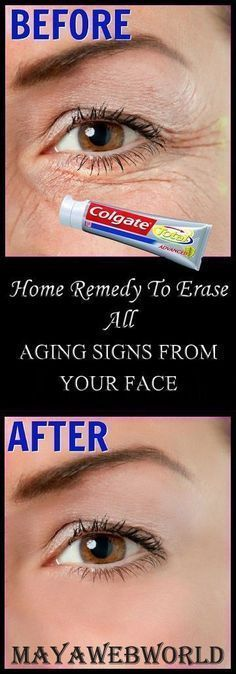 Natural Skin Remedies Who doesn't want youthful and younger looking skin? Aging is a natural process that catches hold of each one of us eventually, but we ourselves make things worse and speed up the aging process. Younger Skin, Younger Looking Skin, Beauty Secrets, Beauty Hacks, Beauty Tips, Belleza Natural, Skin Treatments, Natural Skin, Natural Beauty