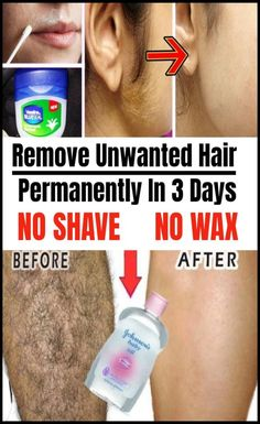 Remove Unwanted Hair Permanently In 3 Days No Shave No Wax! Remove Unwanted Hair Permanently In 3 Days No Shave No Wax! Make Up Tutorials, Inbound Marketing, Marketing Digital, Affiliate Marketing, Anti Aging, Endocannabinoid System, Hair Removal Remedies, Acne Marks, Beauty Make-up