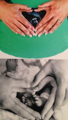 Before and after/ sonogram and baby picture!