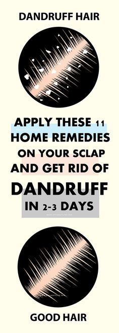 11 Effective Home Remedies to Get Rid of Dandruff Permanently! 11 Effective Home Remedies to Get Rid of Dandruff Permanently! Remove Dandruff Home Remedies, How To Remove Dandruff, Oils For Dandruff, Hair Dandruff, Getting Rid Of Dandruff, Anti Dandruff Shampoo, Hair Remedies, Natural Remedies For Dandruff, Natural Remedies