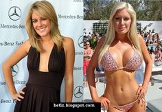 Heidi Montag before and after plastic surgery. From a gorgeous girl to a fake plastic caricature look.
