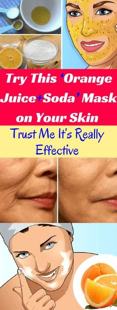Try This 'Orange Juice+Soda' Mask on Your Skin, Trust Me It's Really Effective -