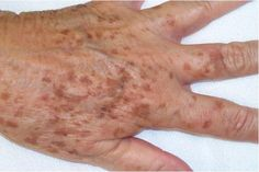 As we age, brown spots can appear on the skin. These are called age spots or liver spots. They look like flat brownish-colored skin discolorations, which can appear on the face and other areas of the body. Age Spot Remedies, Skin Care Remedies, Home Remedies, Liver Spot, Skin Tag On Eyelid, Age Spots On Face, Age Spot Removal, Brown Spots, Dark Spots