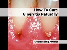 How To Cure Gingivitis Naturally