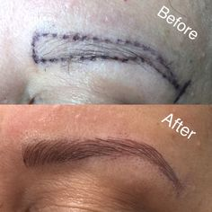 Microblading is the solution for people wanting fuller/natural looking brows.  It's semi-permanent and lasts up to 2 years!  Imagine not having to spend so much time on your eyebrows before leaving the house!!