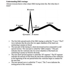Understanding EKG Speaking of.....OT: Toolkit of All Toolkits-Pinned by SOS Inc. Resources @sostherapy http://pinterest.com/sostherapy.
