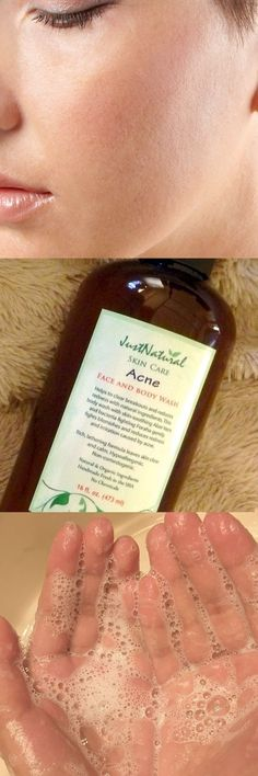 I am quite skeptical on what can work for me. But boy does this acne face and body wash work. I know everyone is different but the combo of these natural ingredients is what my skin really needs. I have been suffering from cystic acne for years and I finally have that weight off my shoulders. It feels great. #acnechest