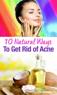 10 Natural Ways to Get Rid of Acne Fast | Some of these will surprise you!