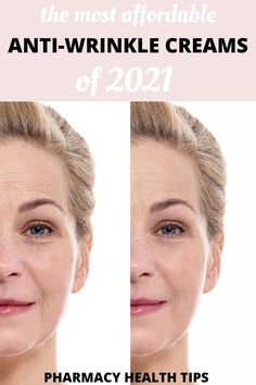 This anti wrinkle skin care treatments are so good. I started using Differin a few months ago and have niced fewer fine lines on my face. Highly recommend it! #wrinkles Under Eye Creases, Under Eye Wrinkles, Under Eye Puffiness, Face Wrinkles, Eye Treatment, Skin Care Treatments, Natural Wrinkle Remedies, Under Eye Hollows