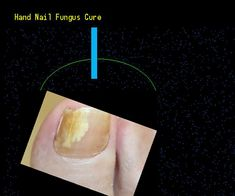 Hand nail fungus cure - Nail Fungus Remedy. You have nothing to lose! Visit Site Now