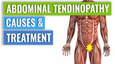 Abdominal Tendinopathy - Causes & Treatment Including Exercises