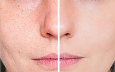 Pour en finir avec les problèmes de peau comme l'acné ou les pores dilatés nous pouvons appliquer un traitement à base de tomate dont les nutriments seront très bénéfiques pour la santé de notre peau.