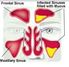Uncovertebral Joint | health & medical | Dr bones ...  Pansinusitis