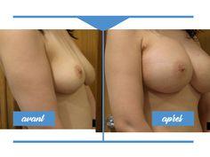 Avant / Après photos. Chirurgie des seins. Augmentation mammaire · Augmentation mammaire. Plastie mammaire