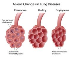 Alveoli changes in lungs