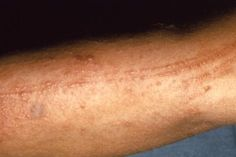 A poison oak rash can be confused with the rash caused by poison ivy or poison sumac, unless you know which of these plants are growing in your area.