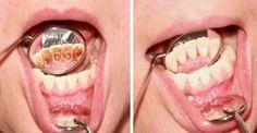 Ako sa zbaviť zubného kameňa