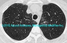 10. 間質性肺炎 症例092:剥離性間質性肺炎 別症例 CT,『コンパクトX線アトラスBasic 胸部単純X線写真アトラス vol.1 肺』 Radiology