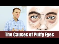 What are the causes of puffy eyes and bags under eyes?  Watch to find out!   https://www.drberg.com/blog/body-conditions/what-really-causes-puffy-eyes