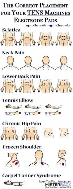 TENS is acknowledged and claimed to be a non-invasive and drug-free method for pain relief. How do I place my electrode pads to my tens unit or tens machine in a correct way? No matter if you have sciatica neck pain lower back pain tennis elbow chroni #TipsAndAdviceForBackPain