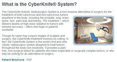 Cyberknife robotic cancer surgery