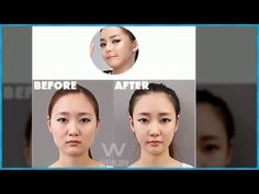 Korean Best Face Contouring, Square Jaw Reduction Plastic Surgery in Korea