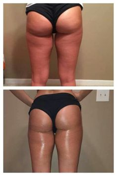 ItWorks defining gel!  Defining Gel is an intensive skin care gel that deeply hydrates while firming areas such as the abdomen, back, legs, and upper arms. When used regularly, Defining Gel minimizes the appearance of cellulite and varicose veins. It's the perfect companion to our Ultimate Body Applicator. Visit my website www.whatdoyouhave2lose.com brittanyraymondupton@myitworks.com