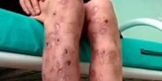 Using Krokodil is weird, but injecting it into genitals is totally out of the world... oO