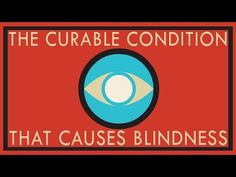 An estimated 20 million cases of blindness worldwide are caused by  cataracts, a curable condition affecting the lens that focuses images  onto the eye's retina. But how are cataracts formed, and how can we  prevent them? Andrew Bastawrous gives the facts on cataracts.